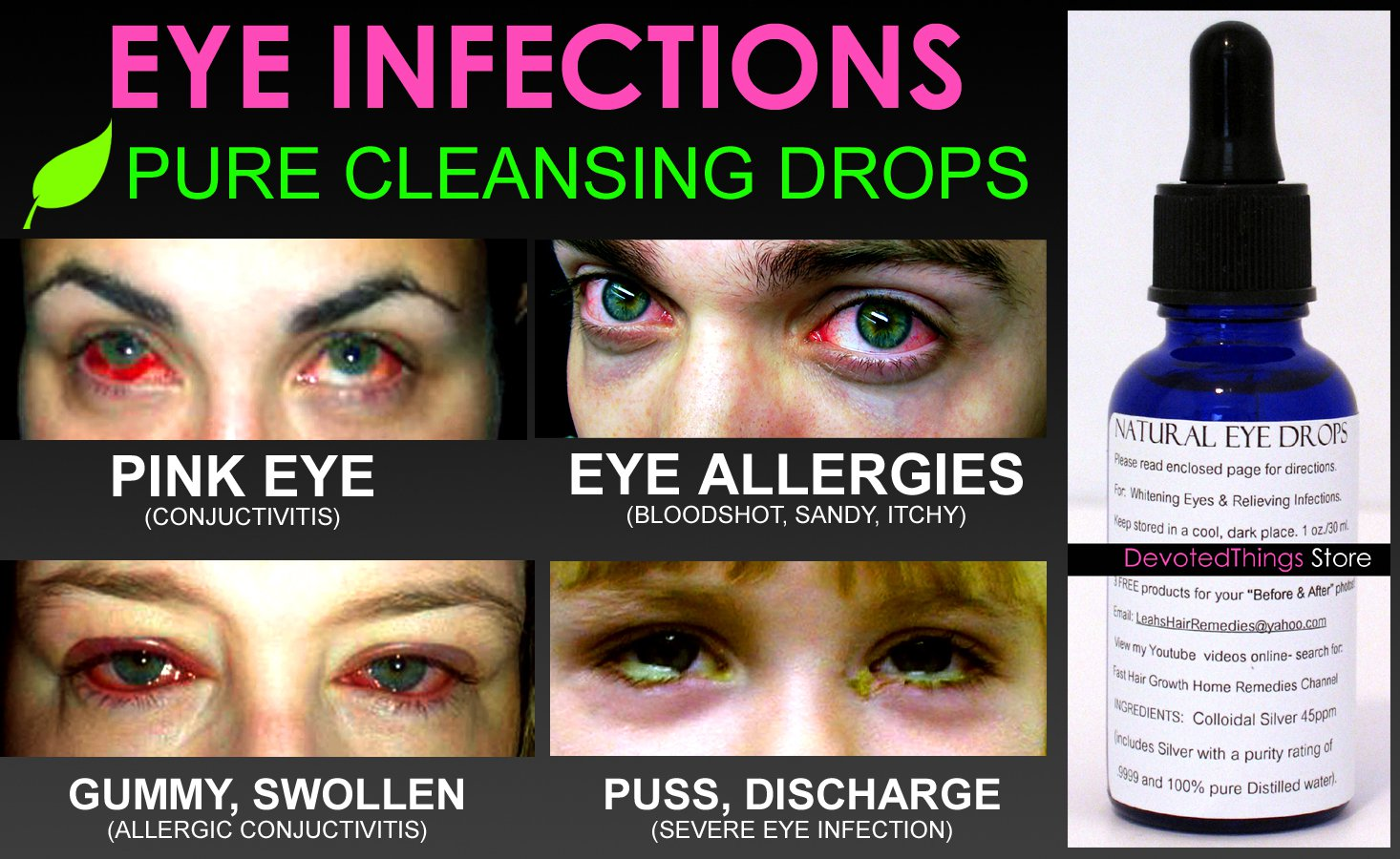 Natural Eye Remedies For Allergies