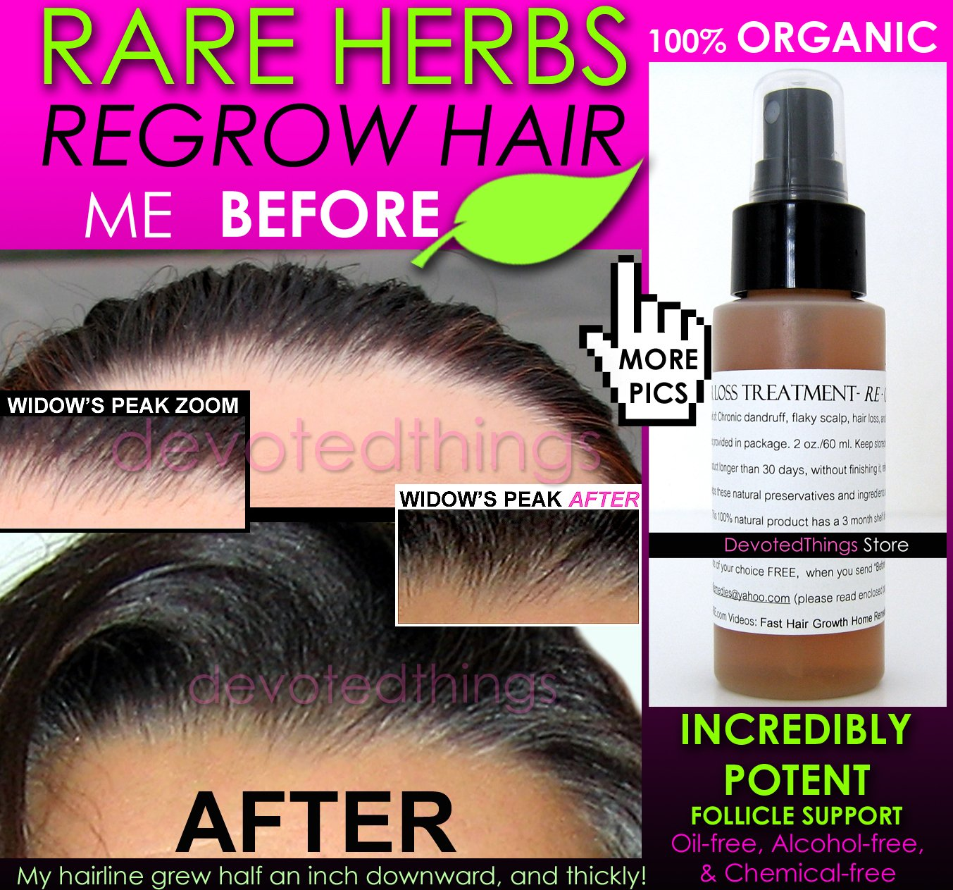 Best Natural Organic Hair Spray