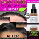 BEST ORGANIC Hair Regrowth Treatment Hair Loss Thinning Dandruff All In 1