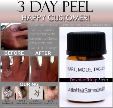 HPV Wart Remover, All Warts, Mole, Skin Tag, Keloid Scar ALL-IN-1 Removal Product