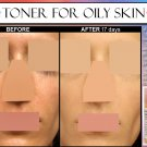 ALCOHOL FREE HERBAL Toner For Oily Skin Acne with Salicylic Acid, Lemon, Cleansing Enzymes