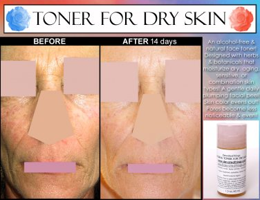 NATURAL ALCOHOL FREE TONER for Dry, Sensitive, Aging Skin, Rosewater, Calendula, and Extracts