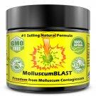 Molluscum Contagiosum Treatment Cream