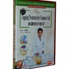Cupping Treatment for Common Cold (DVD)(Subtitles:English)