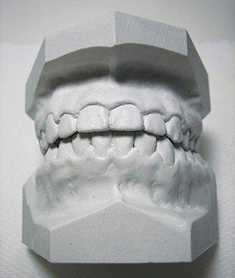 Mouth Guard Study Model