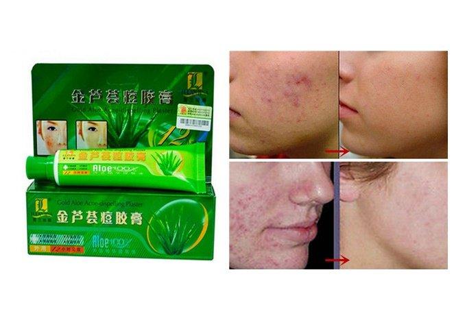ROLANJONA Gold Aloe Acne Removal Acne-dispelling Cream Anti-acne Ointment Anti Dark Sore Plaster