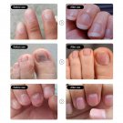 1PCS Repair To Nails Polish Fix Nail Problems Nutrient Solution For Increasing Nail Gloss