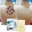100g Natural Goats Milk Soap Bar Acne Treatment Sea Salt Soap