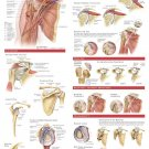 Anatomy And Injuries Of The Shoulder Wall Print POSTER Decor 32x24