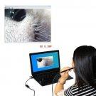Multifunctional HD Visual Ear Spoon Mini USB Ear Cleaning Endoscope for PC