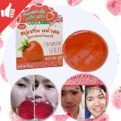 New++80g. Strawberry serum soap for reduce Steroid acne/ Acne spots /whitening