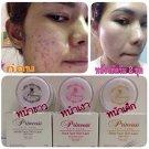 10G.Princess Skin Care Whitening Acne Cream Baby Face,Aura Face,White Fa