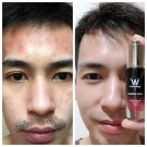 Wink White Essence Facial SerumNourishClear AcneSkin Smooth Reduce Dark