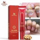 Nail Care Herbal Nail Repair Cream Anti Fungal Nail Toe Nail Fungus Treatment