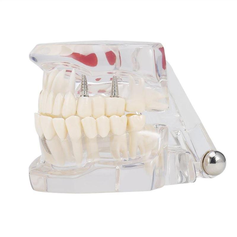 Professional Detachable Tooth Teeth Disease Moldel Dental Implant Display