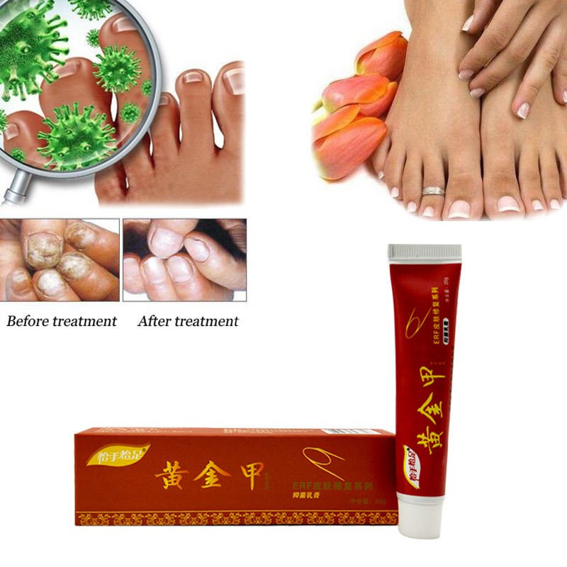 Chinese Natural Herbal Toe Nail Fungus Treatment Anti Fungal Nail Infection New