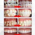 Dental Tooth Orthodontics Brace Aligner & Retainer Teeth Whitening Tooth Tray