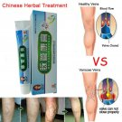 Chinese Natural Herbal Treatment For Varicose Veins 20g/Tube Vascular Massage