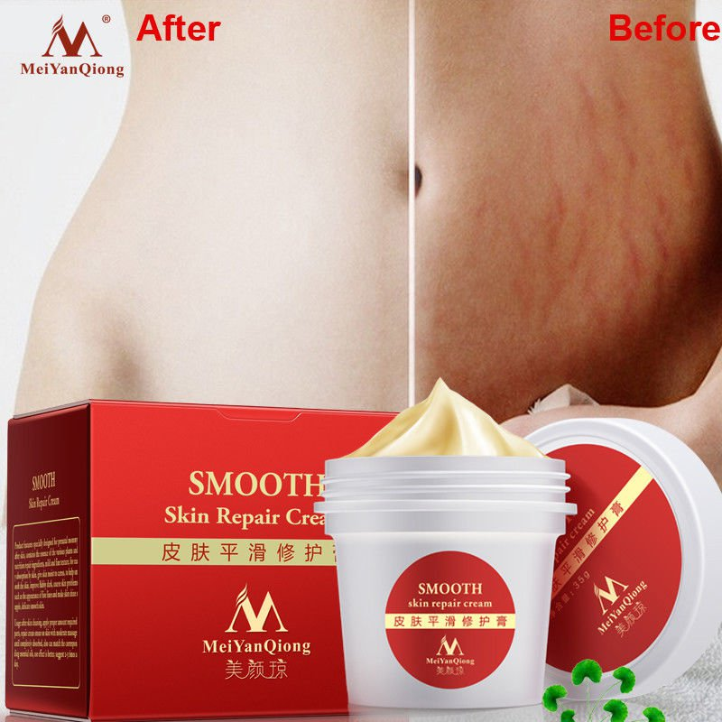 Smooth Body Cream Stretch Scar Mark Removal Maternity Skin Repair Cream