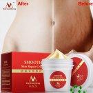 Smooth Body Cream Stretch Scar Mark Removal Maternity Skin Repair Cream