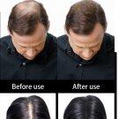 100g Hair Fiber Building Powder Hair Loss Dye Styling Keratin Thinning Hair New