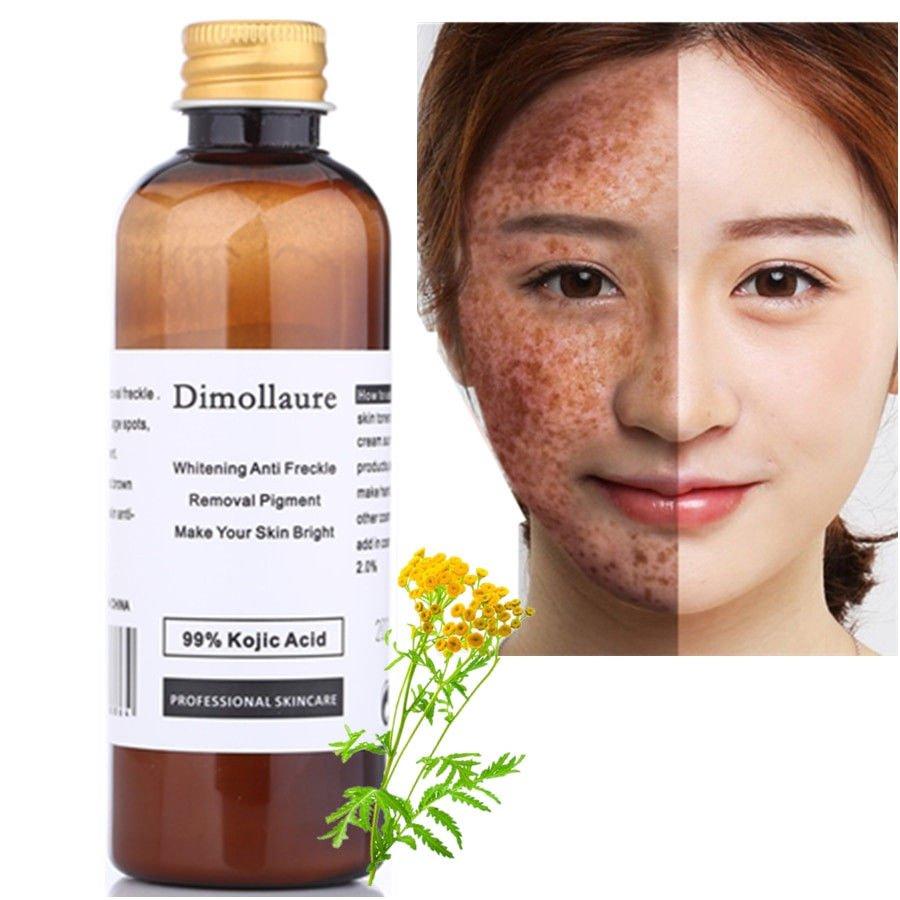 Dimollaure 99% Kojic Acid Whitening Face Cream Freckle Melasma Acne Spot Removal