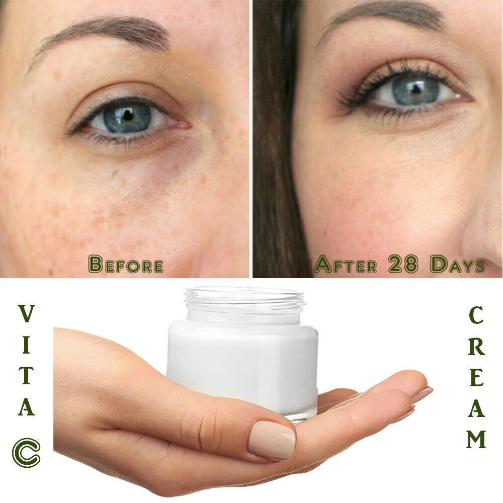 Matrixyl 3000 Peptide Hyaluronic Acid Retinol Collagen AntiAging Vitamin C Cream
