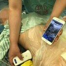 smartphone Wireless Portable Ultrasound Mini Scanner Linear Array Probe 7.5Mhz