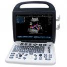 Color Doppler Portable Ultrasound Scanners EC-800