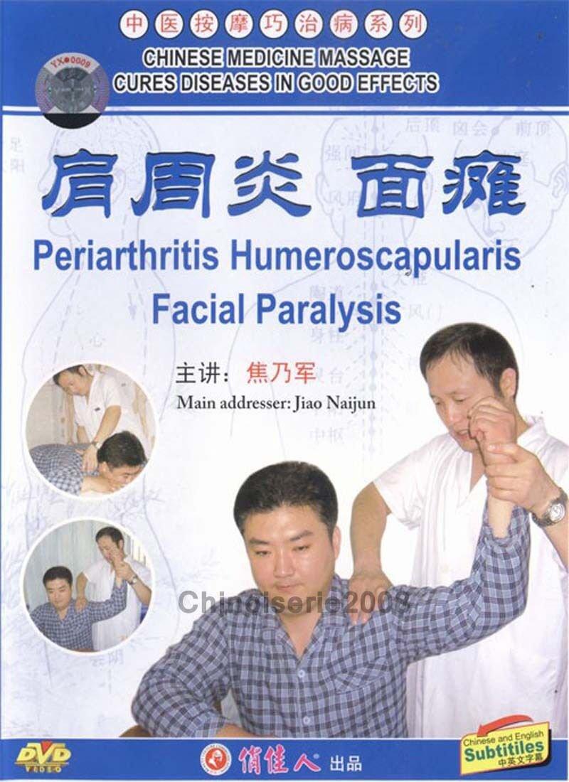 DT052-03 Chinese Medicine Massage - Periarthritis Humeroscapularis Facial Paralysis DVD