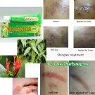 Shingles, Chickenpox,Herpes Treatment Thailand Ayurveda Cream FDA registered10g