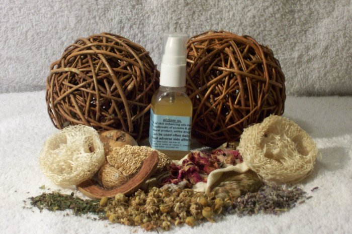 ECZEMA/PSORIASIS TOPICAL OIL-11 moisturizers, african essential oils, NO steroids
