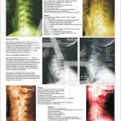 """Phases Cervical Spinal Degeneration Poster 18"""" X 24"""" Chiropractic Chart"""