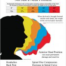 Text Neck Syndrome Poster Wall Chart Chiropractic Physical Therapy