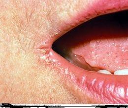 Cure Angular Cheilitis Naturally