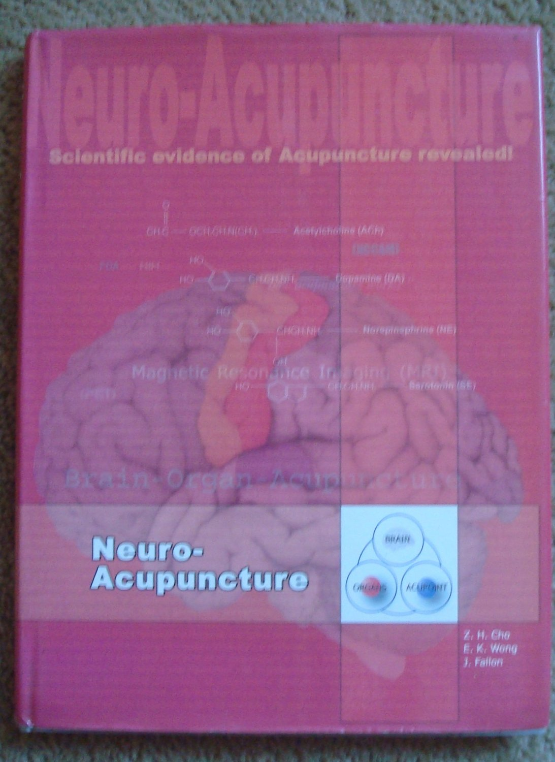 Neuro-Acupuncture: Scientific Evidence of Acupuncture Revealed